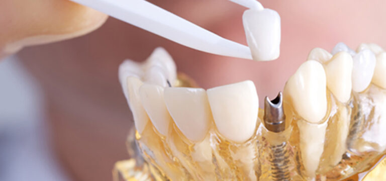 Clínica colombiana de Implantes dentales